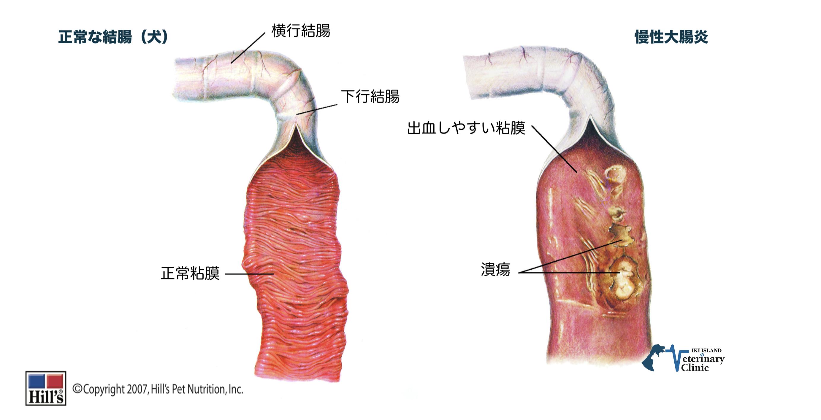 は と 結腸 炎